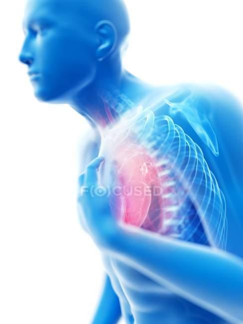 3d renderizado ilustración de silueta azul del hombre con dolor en el pecho sobre fondo blanco . - foto de stock