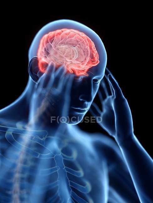 3D оказанные иллюстрации синий силуэт человека с головной болью. — стоковое фото