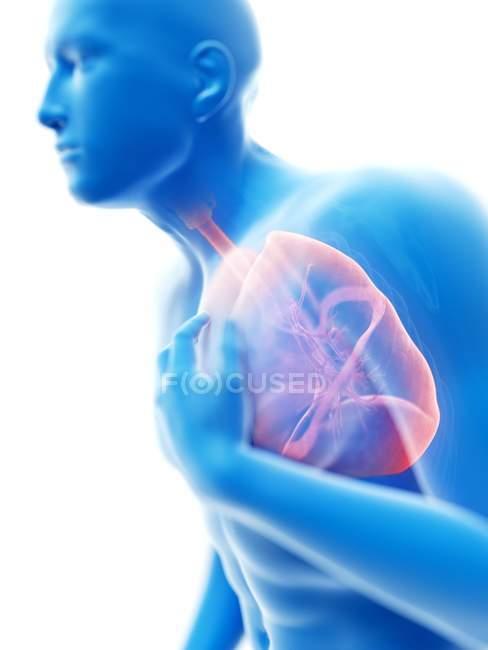 3d renderizado ilustración de silueta azul del hombre con los pulmones inflamados . - foto de stock