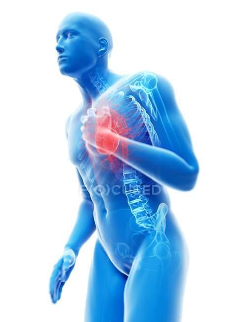3d reso illustrazione della silhouette blu dell'uomo con dolore toracico . — Foto stock