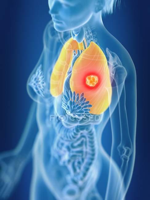 Illustration en 3D du cancer du poumon féminin coloré en silhouette corporelle . — Photo de stock