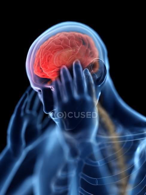 3D оказанные иллюстрации синий силуэт человека с головной болью на черном фоне. — стоковое фото