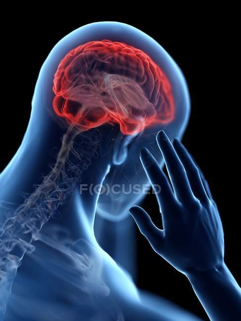 3d rendered illustration of blue silhouette of man with headache on black background. — Stock Photo