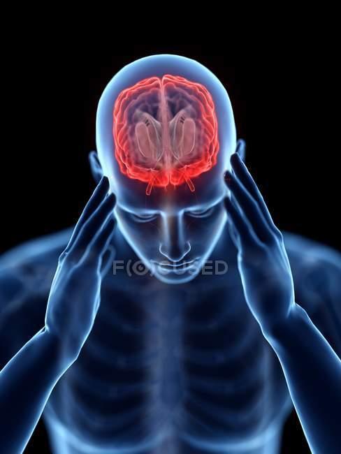 3d renderizado ilustración de silueta azul del hombre con dolor de cabeza sobre fondo negro . - foto de stock