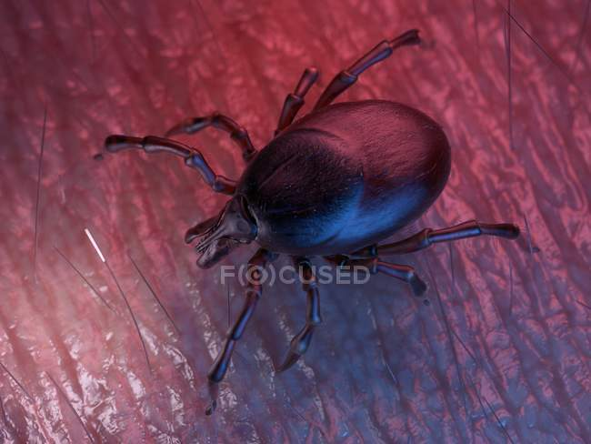 3D prestado ilustración coloreada de la garrapata en la superficie de la piel. - foto de stock