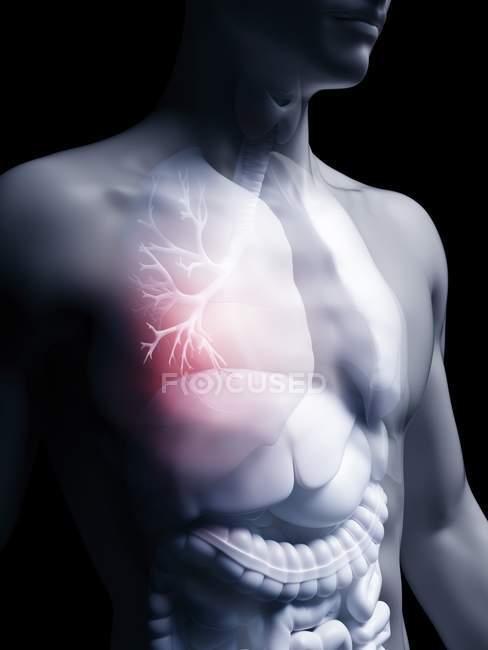 Ilustración de bronquios humanos en silueta corporal . - foto de stock