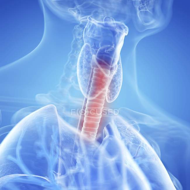 Medical illustration of inflamed trachea in human body. — Stock Photo