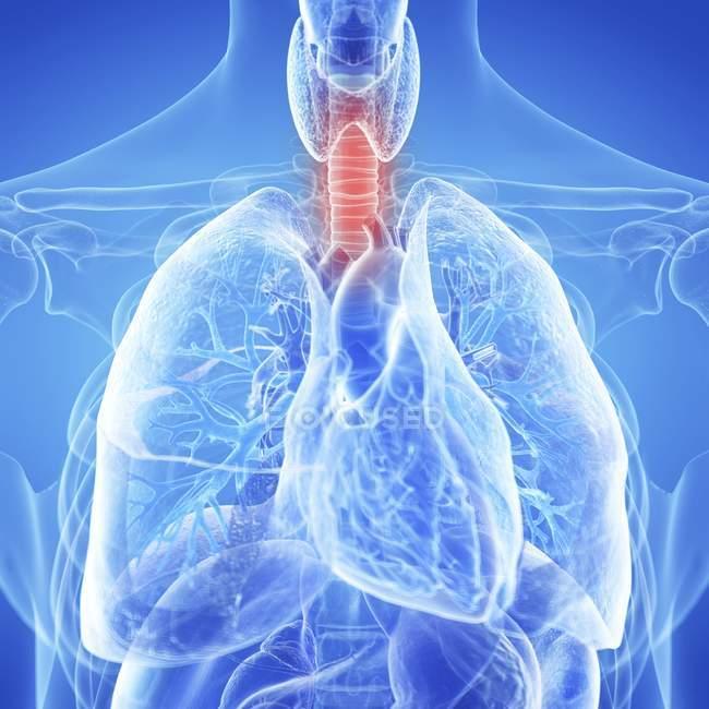 Ilustración médica de la tráquea inflamada en el cuerpo humano . - foto de stock