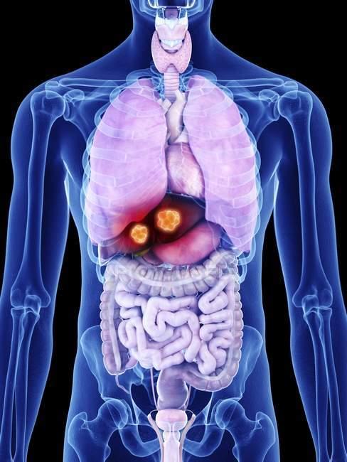 Ilustração do câncer de fígado na silhueta do corpo humano . — Fotografia de Stock