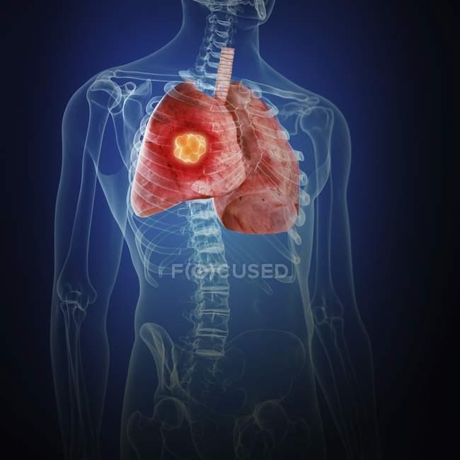 Ілюстрація раку легенів у організму людини силует. — стокове фото