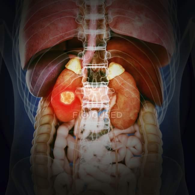 Ilustración del cáncer renal en la silueta del cuerpo humano . - foto de stock