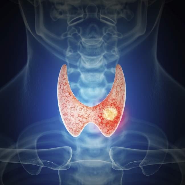 Ilustración del cáncer de tiroides en la silueta de la garganta humana . - foto de stock