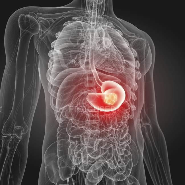 Ilustración del cáncer de estómago en la silueta del cuerpo humano . - foto de stock