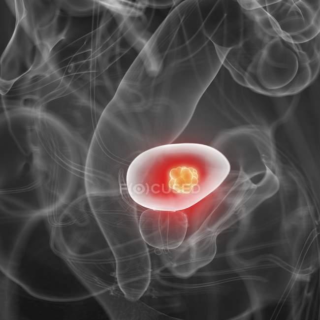 Иллюстрация рака мочевого пузыря в силуэте человеческого тела . — стоковое фото