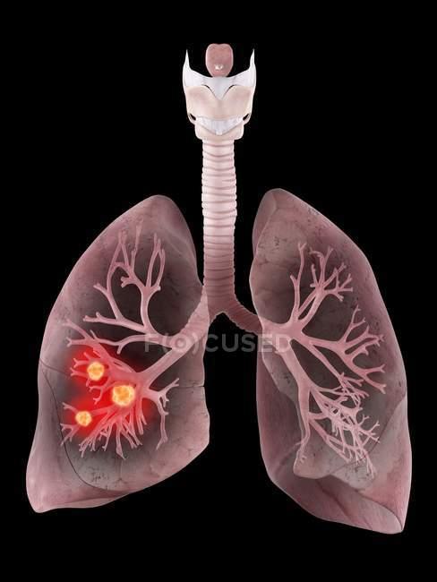 Ілюстрація людського раку легенів і бронхів. — стокове фото