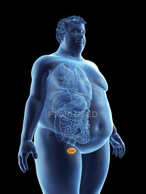 Ilustración de la silueta del hombre obeso con vejiga visible . - foto de stock