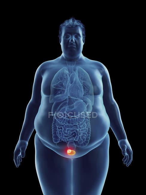 Ilustración de la silueta del hombre obeso con tumor vesical resaltado . - foto de stock