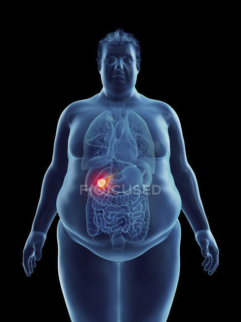 Ilustración de la silueta del hombre obeso con tumor de vesícula biliar resaltado . - foto de stock
