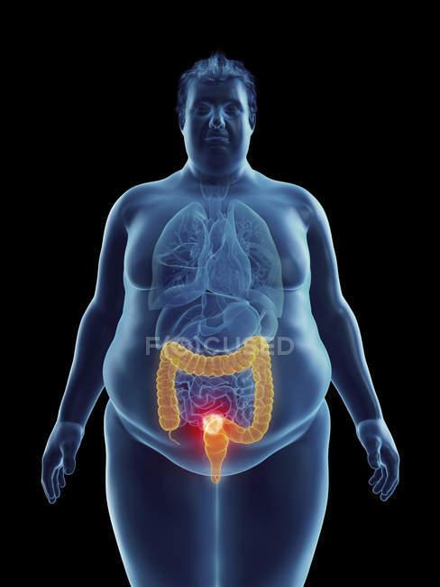 Ilustración de la silueta del hombre obeso con tumor de colon resaltado . - foto de stock