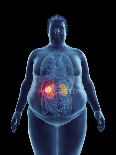 Illustration of silhouette of obese man with highlighted kidney tumor. — Stock Photo