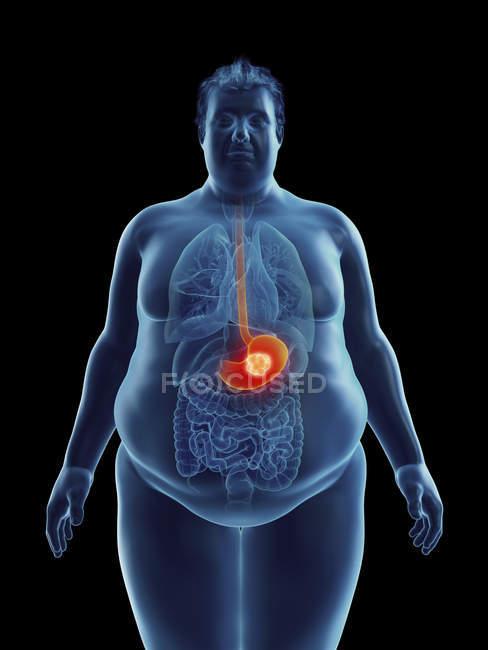 Ilustración de la silueta del hombre obeso con tumor estomacal resaltado . - foto de stock