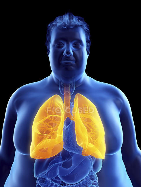 Illustration of silhouette of obese man with visible lungs. — Stock Photo
