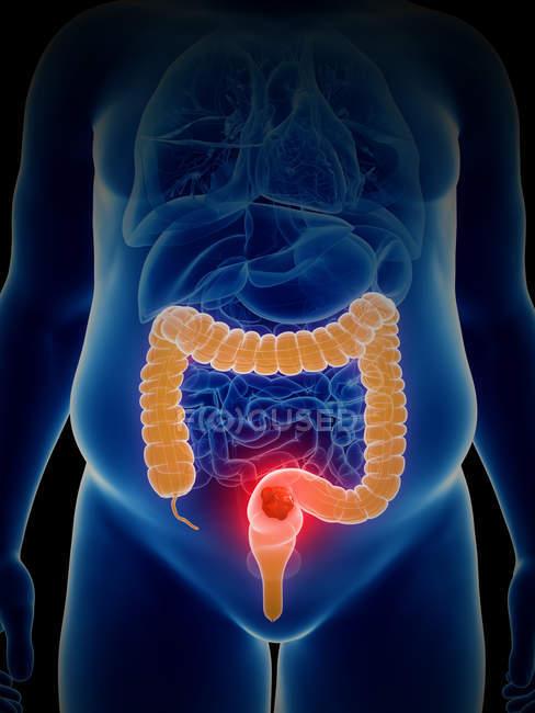 Ilustración del cáncer de colon en la silueta del cuerpo humano . - foto de stock