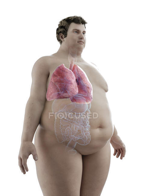 Illustration of figure of obese man with visible lungs. — Stock Photo