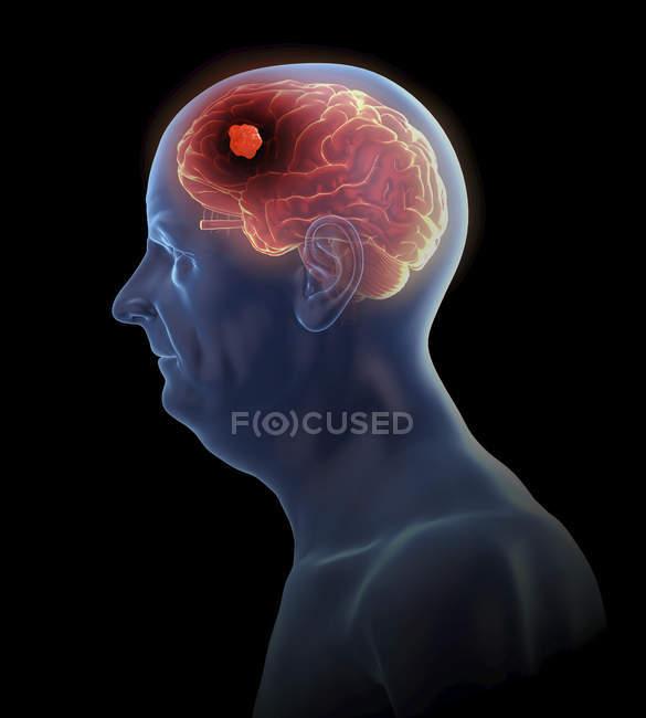 Ilustración del tumor cerebral en la silueta del hombre mayor . - foto de stock