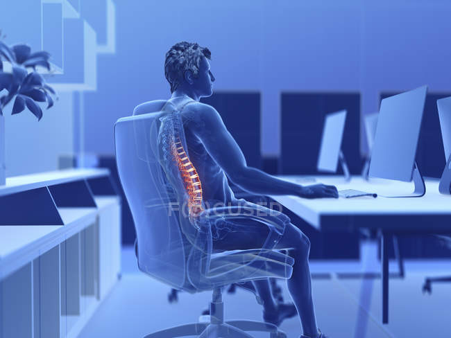 Illustration of male office worker with painful back. — Stock Photo