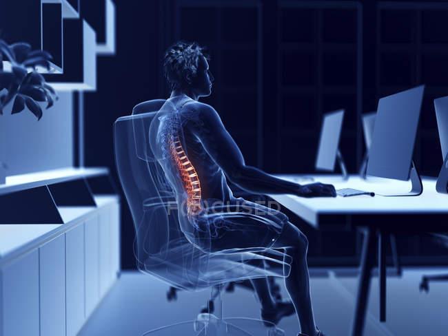 Illustrazione del lavoratore d'ufficio maschile con schiena dolorosa . — Foto stock