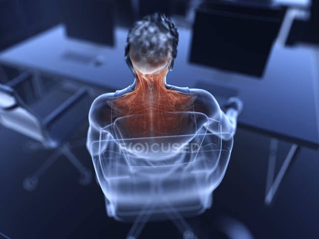 Illustration of male office worker painful muscles. — Stock Photo