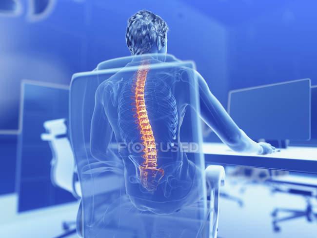Ilustração de trabalhador de escritório masculino com costas dolorosa. — Fotografia de Stock