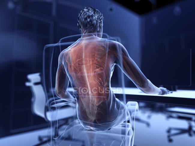 Ilustração dos músculos dolorosos do escritório masculino trabalhador. — Fotografia de Stock