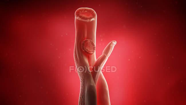 Ілюстрація schistosoma крові fluke плоских хробаків. — стокове фото