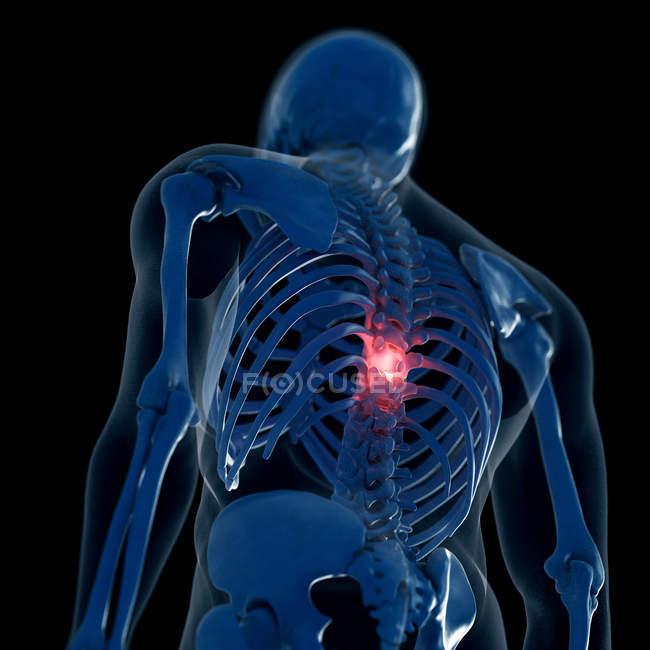 Цифровий ілюстрація хворобливі грудний відділ хребта в скелет людини. — стокове фото