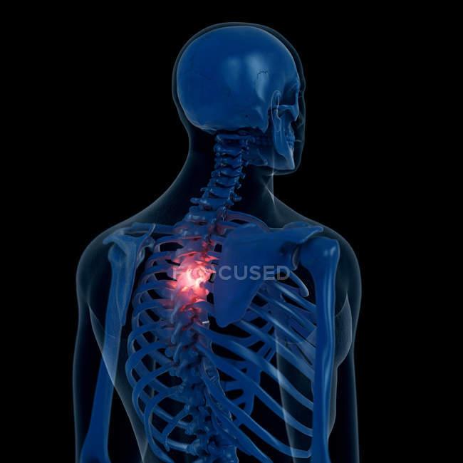 Ilustración digital de la columna torácica dolorosa en el esqueleto humano . - foto de stock