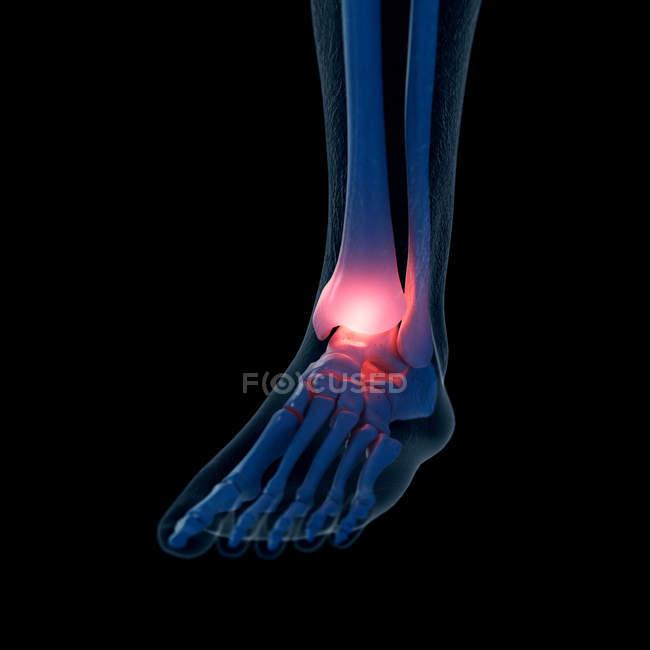 Ilustración digital del tobillo doloroso en el esqueleto humano . - foto de stock