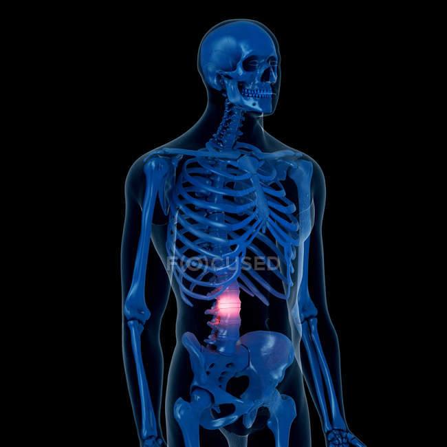 Цифровий ілюстрація болючою спини в скелет людини. — стокове фото