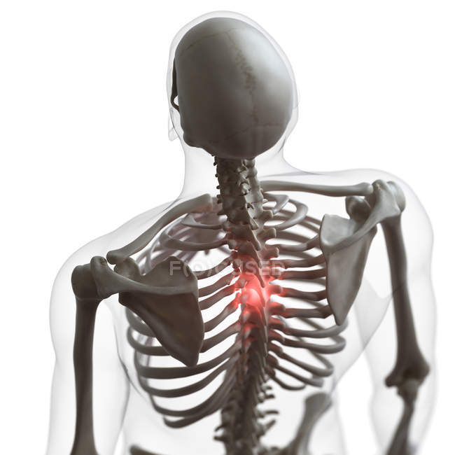 Digital illustration of painful back in human skeleton. — Stock Photo