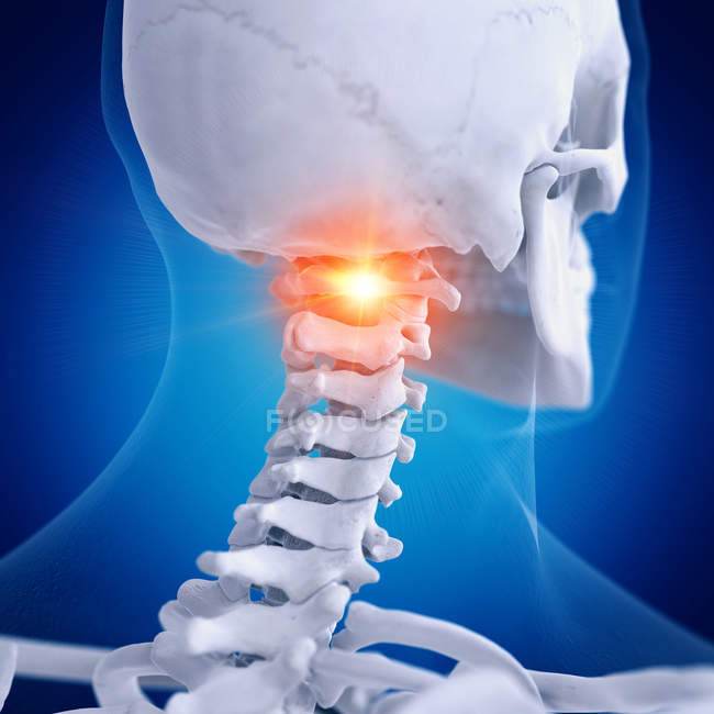 Digital illustration of painful atlas vertebrae in human skeleton. — Stock Photo