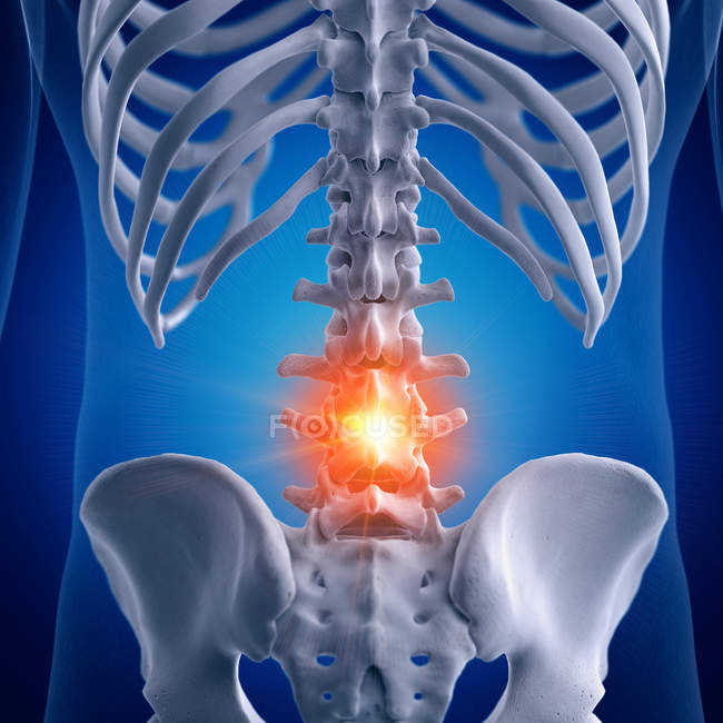 Illustration of painful lumbar spine in human skeleton on blue background. — Stock Photo