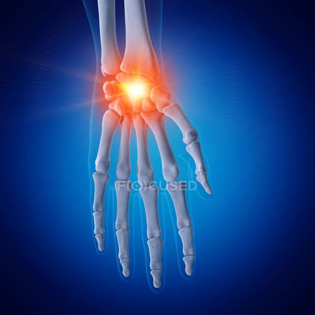 Ilustración de muñeca dolorosa en esqueleto humano sobre fondo azul . - foto de stock