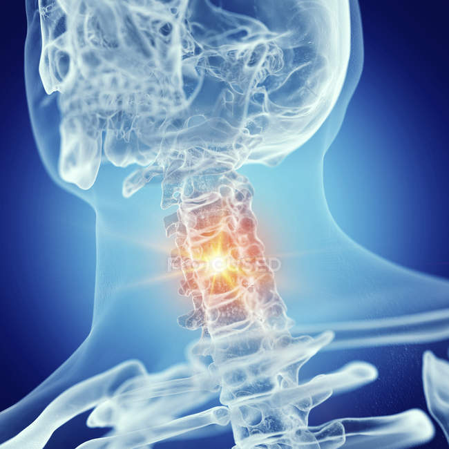 Illustration of cervical spine in human skeleton on blue background. — Stock Photo