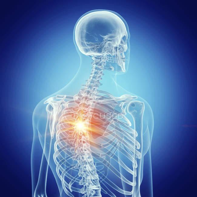 Ilustración del dolor de espalda en el esqueleto humano sobre fondo azul . - foto de stock
