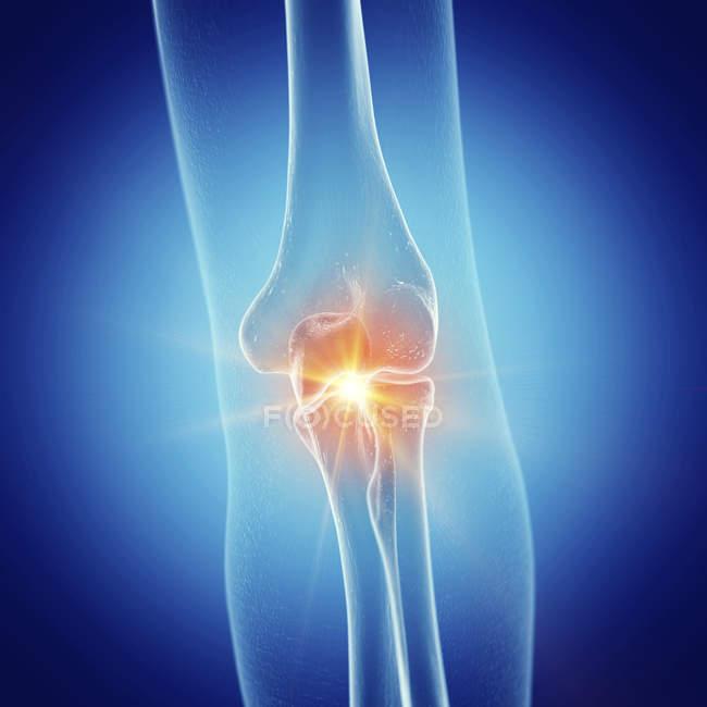 Ilustração da articulação do cotovelo doloroso no esqueleto humano sobre fundo azul. — Fotografia de Stock