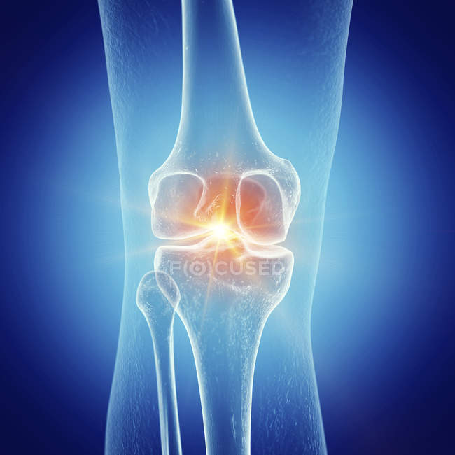 Ilustración de rodilla dolorida en esqueleto humano sobre fondo azul . - foto de stock