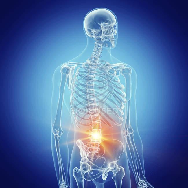 Ilustración de la columna lumbar dolorosa en el esqueleto humano . - foto de stock