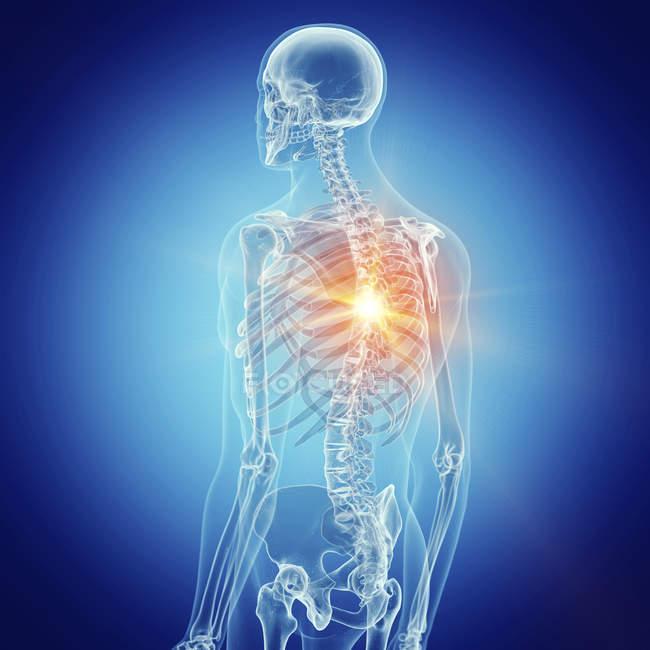 Ilustración de dolor de espalda en el esqueleto humano . - foto de stock