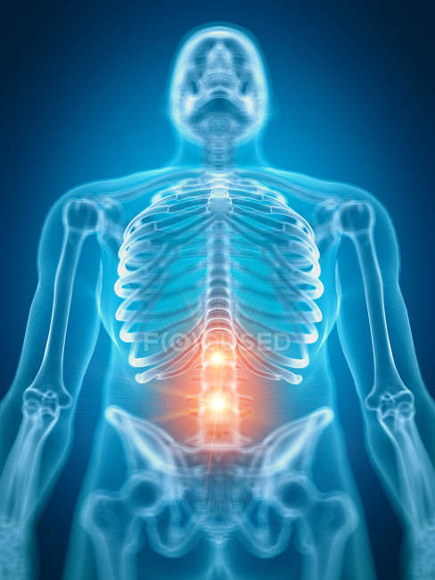 Illustration of painful lower spine in human skeleton part. — Stock Photo